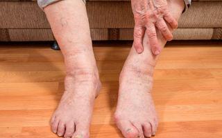 Отек ступней ног у пожилых людей
