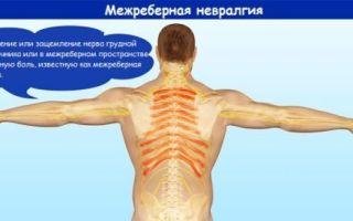 Причины межреберной невралгии и ее последствия