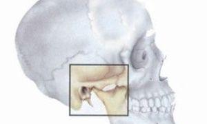 Артроз челюстно-лицевого сустава: поддается ли лечению и какие симптомы?
