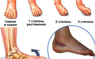 Растяжение связок стопы и его лечение