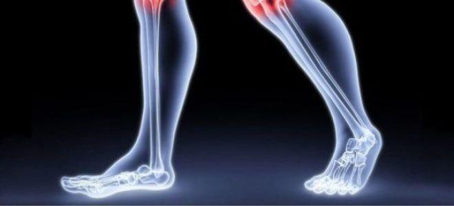 Щелканье в суставах – причины появления щелчков и лечение