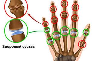 Как лечить артроз кисти руки: симптомы, лечение, диагностика