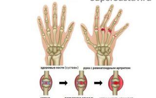 Причины возникновения артрита на пальцах рук и методы лечения.