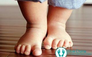 Вальгусное плоскостопие у ребенка