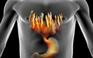 Симптомы и лечение ожога пищевода — методы терапии в зависимости от причин и тяжести поражения
