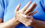Онемение рук от плеча до пальцев
