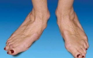 Полиартрит: симптомы, лечение, причины возникновения