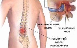 Способы лечения межпозвоночной грыжи и можно ли это сделать без операции?