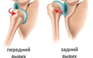 Вывих и подвывих плечевого сустава