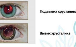 Вывих и подвывих глазного хрусталика — причины патологии и ее виды, методы и нюансы лечения заболевания