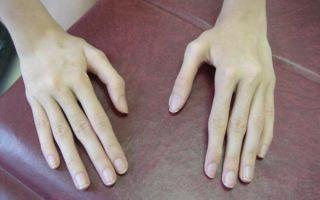 Синдром паучьих пальцев