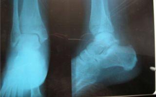 Что такое консолидированный перелом: характерные признаки, лечение и восстановление после травмы