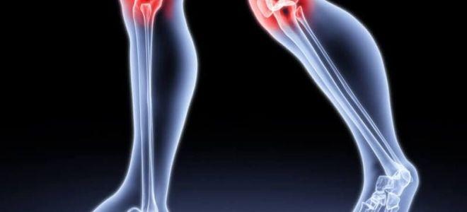 Что нужно делать, чтобы суставы не болели: профилактика заболеваний, лечение народными средствами
