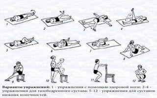 Как разработать колено после травмы