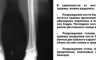 Переломы костей: разновидности травм в зависимости от механизма повреждения и возможные способы терапии