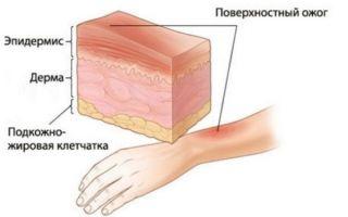 Сколько заживают ожоги разных степеней — классификация повреждений и примерные сроки восстановления тканей