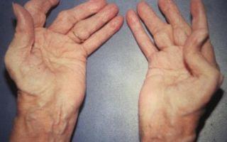 Ревматоидный полиартрит рук или ног