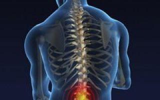 Первые симптомы и способы лечения остеохондроза поясничного отдела позвоночника