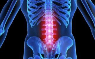 Причины возникновения метастазов в позвоночнике и их лечение
