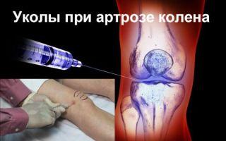 Лекарства для уколов в коленный сустав при артрозе