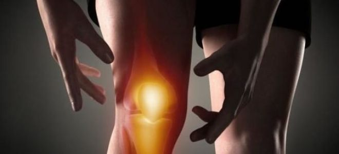 Причины хруста в суставах и способы лечения