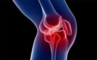 Шишка под коленной чашечкой: причины появления заболевания