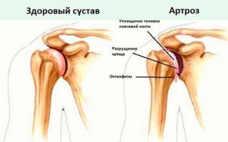 Основные симптомы артроза