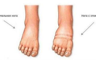 Тендовагинит стопы и его лечение