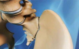 Что такое врожденный вывих бедра и чем он опасен: основные причины патологии, методы лечения