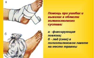 Первая медицинская помощь при вывихе различных суставов