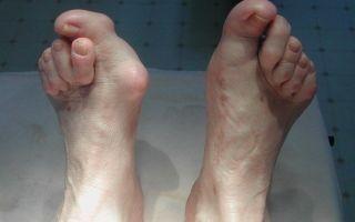 Как проводится лечение вывихнутого пальца на ноге в домашних условиях — эффективные методы терапии
