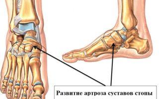 Артроз голеностопного сустава: причины, симптомы, лечение