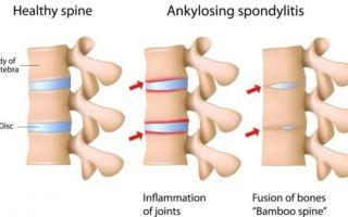 Особенности спондилоартроза грудного отдела позвоночника