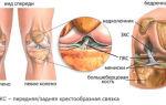 Возможные причины боли в коленном суставе при сгибании