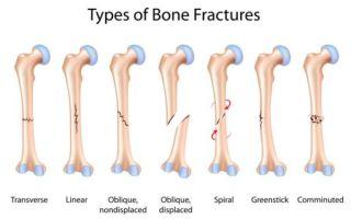 Виды и последствия переломов костей