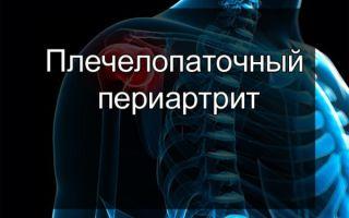 Заболевание плечелопаточный периартрит: симптомы и лечение