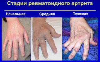 Как лечить полиартрит пальцев и кистей рук?