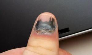 Что делать, если ребенок прищемил палец дверью: первая помощь при травме