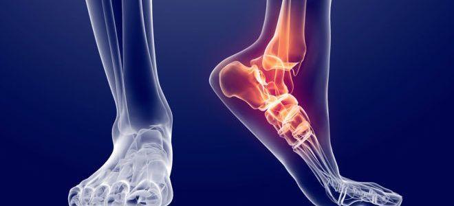 Что делать при разрыве связок голеностопного сустава: виды травмы, комплексное лечение