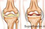 Артрит: симптомы и лечение болезни