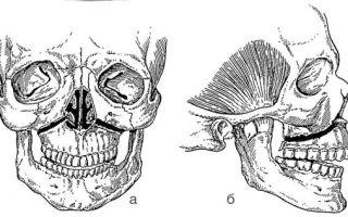 Признаки и последствия перелома верхней челюсти, особенности организации питания больного