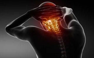 Что делать, если заклинило (защемило) шею: что провоцирует защемление, первые действия при болевых ощущениях