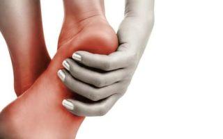 Основные причины боли в пятках