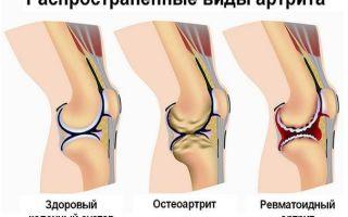 Чем и как лечить суставы на ногах?