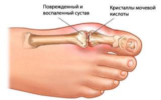 Причины боли в большом пальце ноги