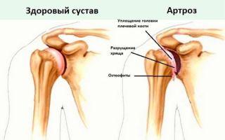 Как правильно лечить артроз суставов