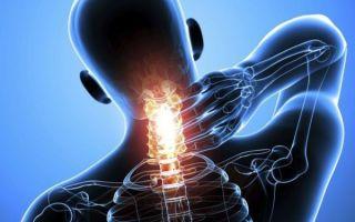 Шейно-грудной остеохондроз — первые признаки заболевания, методы лечения