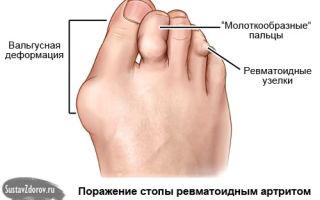 Чем и как лечить артрит суставов стопы