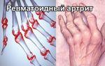 Причины, симптомы и методы лечения ревматоидного артрита