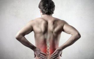 Мышечно-тонический синдром и его симптомы